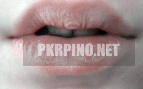 Pengobatan Bibir Kering Dan Luka