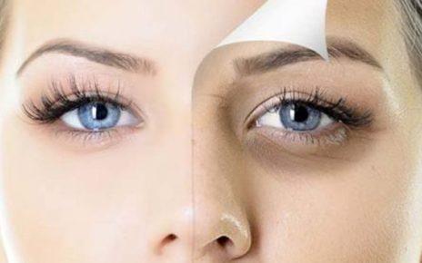 7 Cara Alami Menghilangkan Kantong Mata