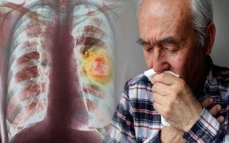 Penyakit Yang Ditimbulkan Dari Polusi Udara? Pembunuh Perlahan