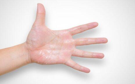 9 Penyebab Telapak Tangan Berkeringat, Pahami Cara Mengatasinya