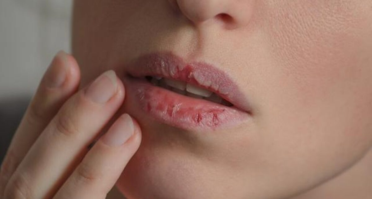 11 Penyebab Bibir Kering dan Cara Mengatasinya yang Tepat